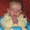 Tumeur de la rétine : la pupille blanche sur la photo a alerté les parents