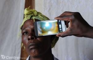 eye phone outil prometteur de diagnostic oculaire dans les pays pauvres